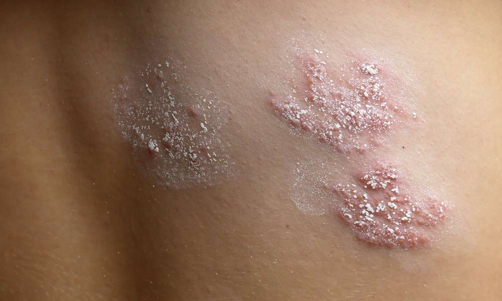 Shingles Nerve Damage