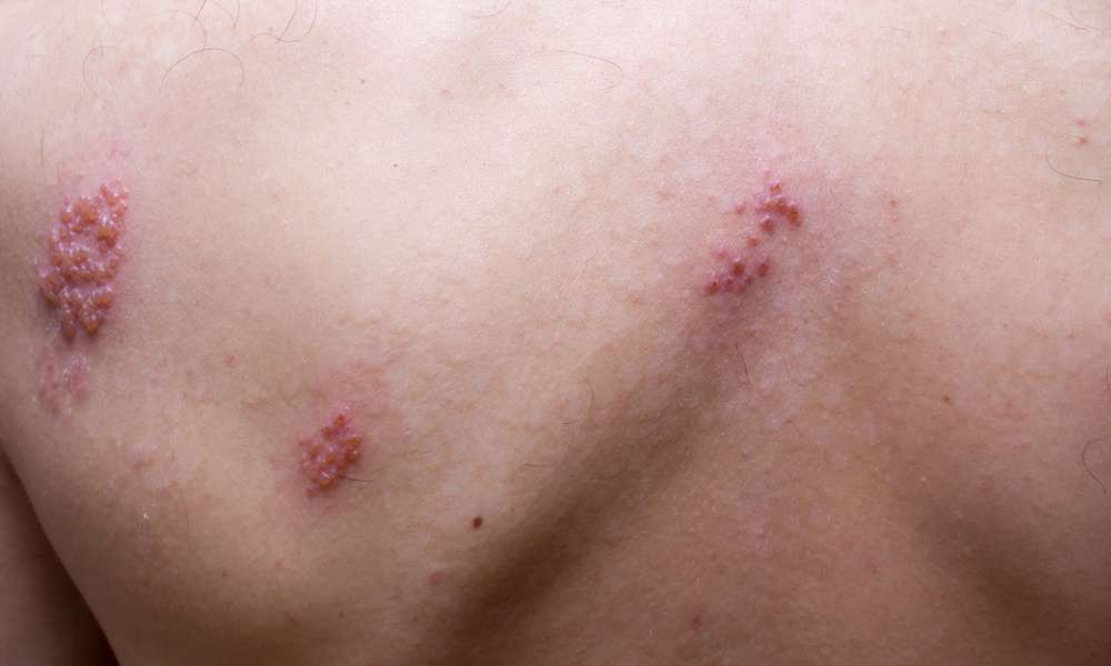 Struggling with Shingles? Here is What You Need to Know